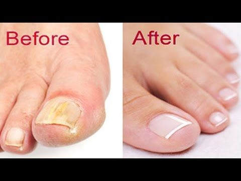 Top 5 Best Nail Fungus Treatments Available On The Market