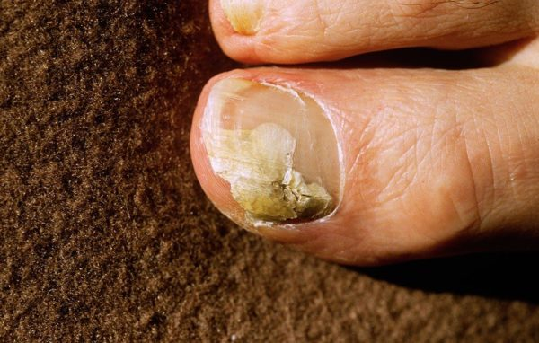 Can Toenail Fungus Spread Internally
