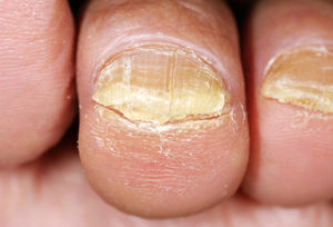 Top 5 Best Home Remedies for Toenail Fungus