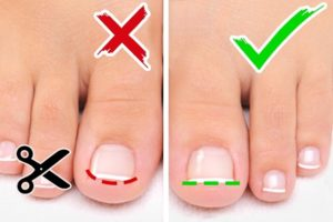 How To Get Toenails To Grow Straight Using Curve Correct