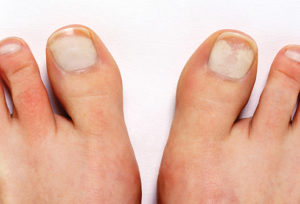 How To Get Rid Of White Spots on Toenails