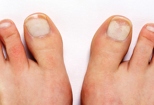 3 Affordable Remedies To Get Rid of White Spots On Toenails