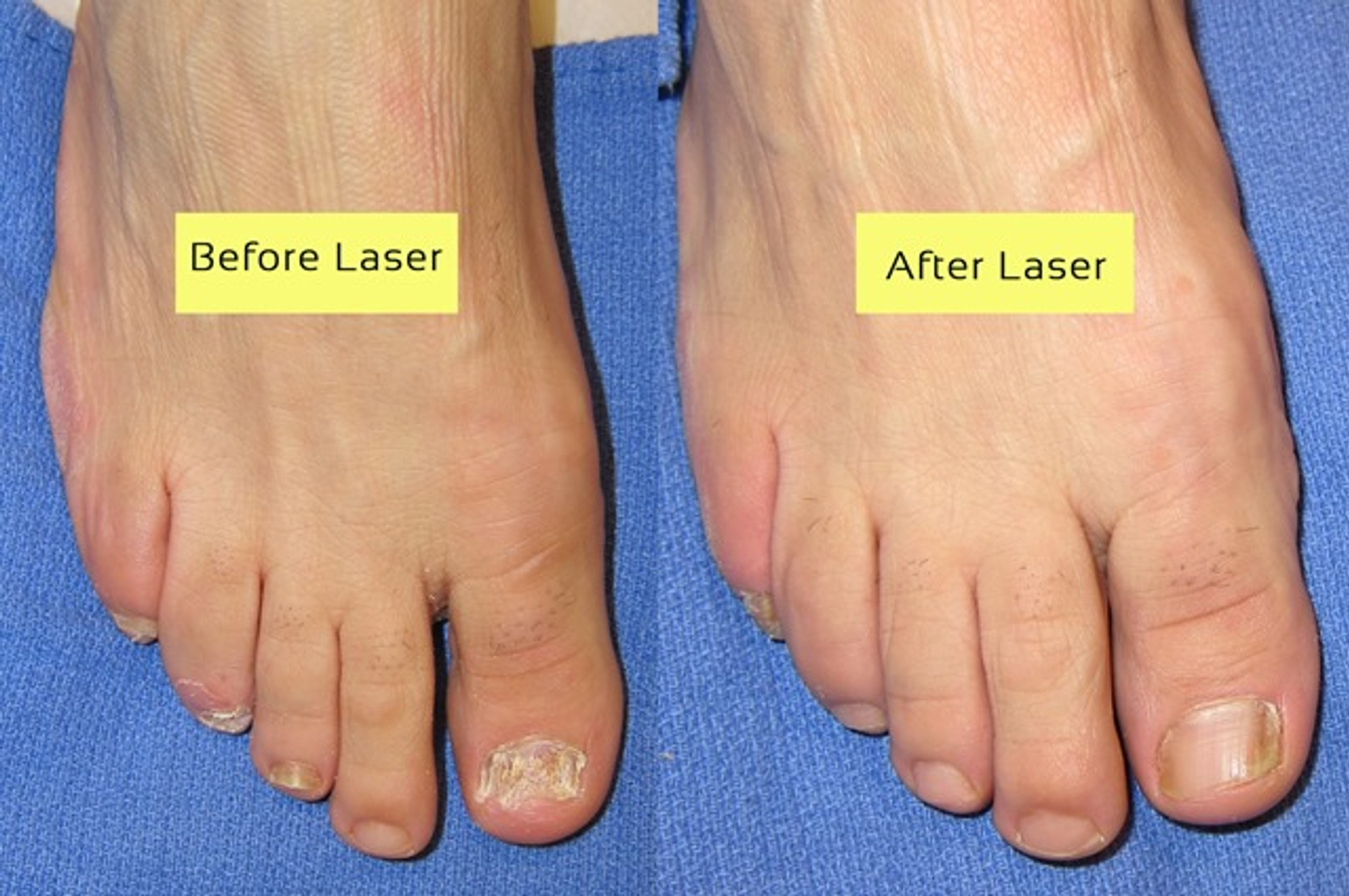 Everything You Need To Know About Laser Treatment For Toenail Fungus